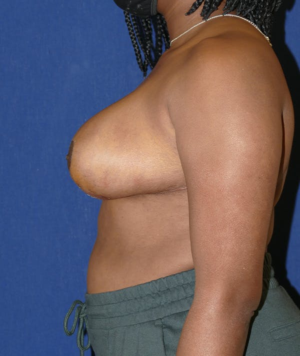 Breast Reduction Gallery - Patient 19493863 - Image 6