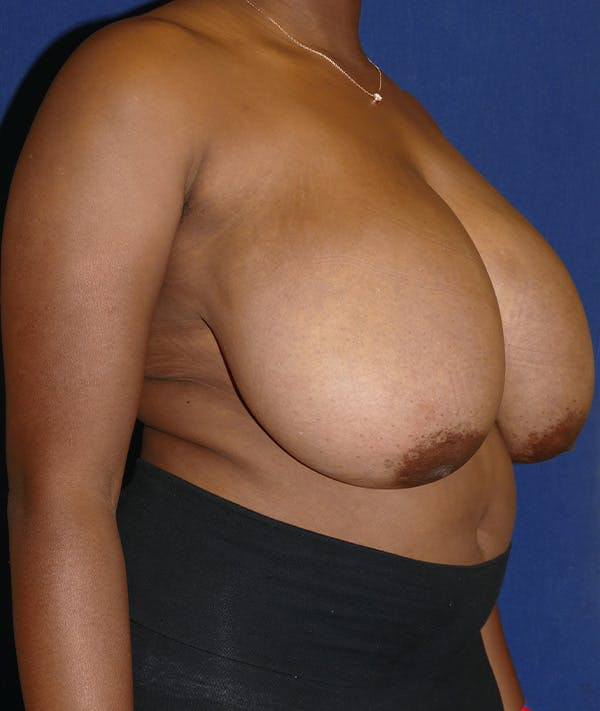 Breast Reduction Gallery - Patient 19493863 - Image 7