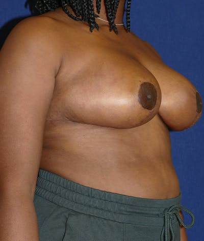 Breast Reduction Gallery - Patient 19493863 - Image 8
