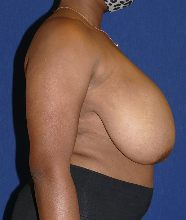 Breast Reduction Gallery - Patient 19493863 - Image 9