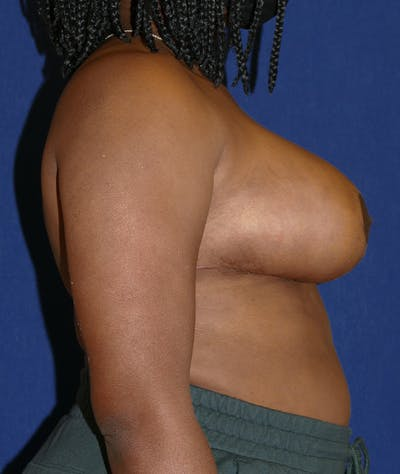 Breast Reduction Gallery - Patient 19493863 - Image 10