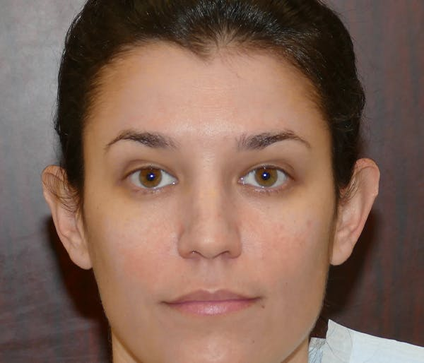Ear Pinning (Otoplasty) Gallery - Patient 25995139 - Image 1
