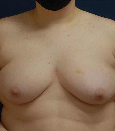 Masculinizing Surgery Gallery - Patient 25995151 - Image 1