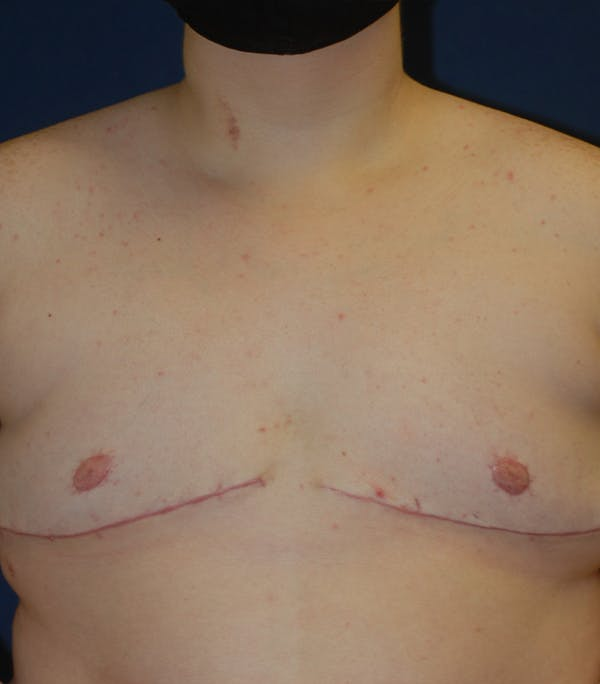 Masculinizing Surgery Gallery - Patient 25995151 - Image 2