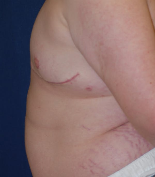 Masculinizing Surgery Gallery - Patient 25995151 - Image 4