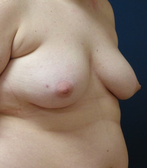 Masculinizing Surgery Gallery - Patient 25995151 - Image 5