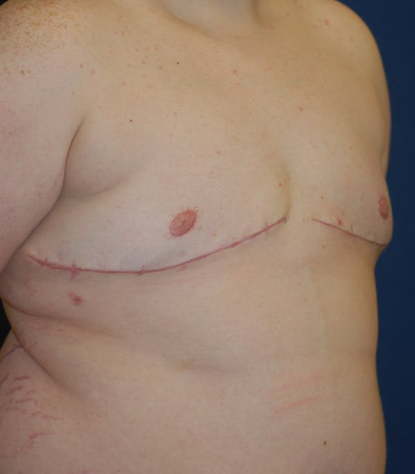 Masculinizing Surgery Gallery - Patient 25995151 - Image 6