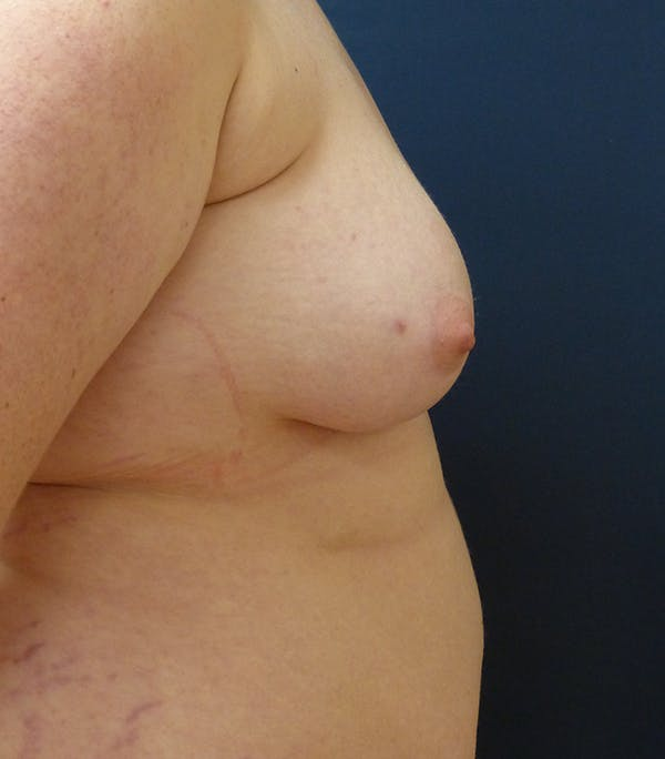 Masculinizing Surgery Gallery - Patient 25995151 - Image 7