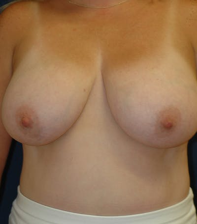 Breast Lift Gallery - Patient 26000114 - Image 1