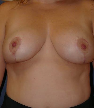 Breast Lift Gallery - Patient 26000114 - Image 2