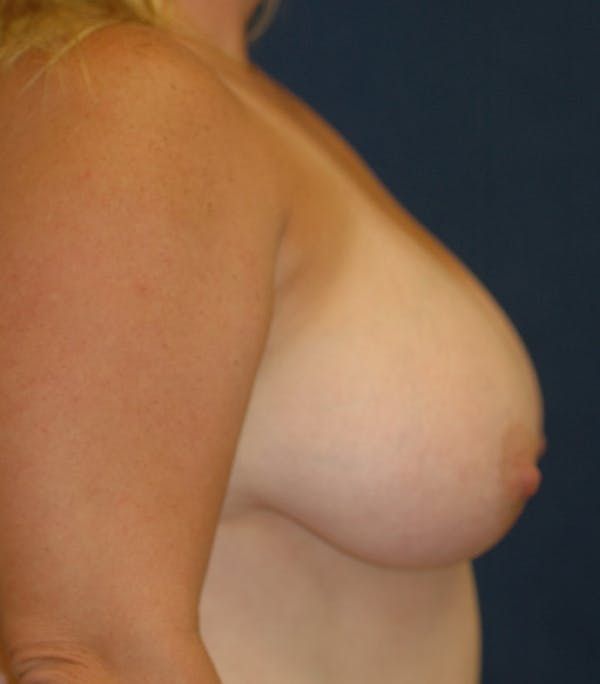 Breast Lift Gallery - Patient 26000114 - Image 3