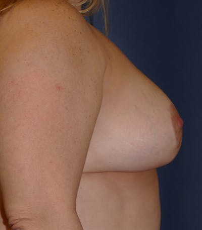 Breast Lift Gallery - Patient 26000114 - Image 4