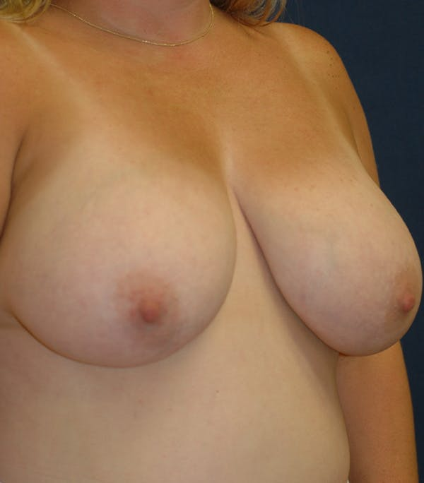 Breast Lift Gallery - Patient 26000114 - Image 5
