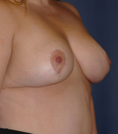 Breast Lift Gallery - Patient 26000114 - Image 6