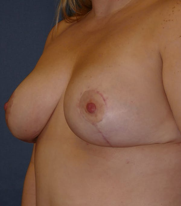 Breast Lift Gallery - Patient 26000114 - Image 8
