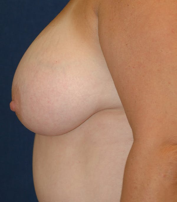 Breast Lift Gallery - Patient 26000114 - Image 9