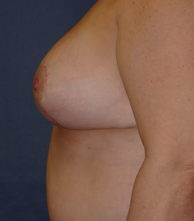 Breast Lift Gallery - Patient 26000114 - Image 10