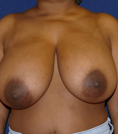 Breast Reduction Gallery - Patient 26000179 - Image 1