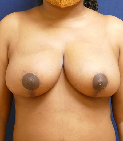 Breast Reduction Gallery - Patient 26000179 - Image 2