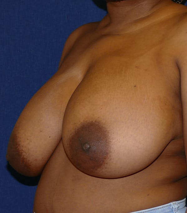 Breast Reduction Gallery - Patient 26000179 - Image 3