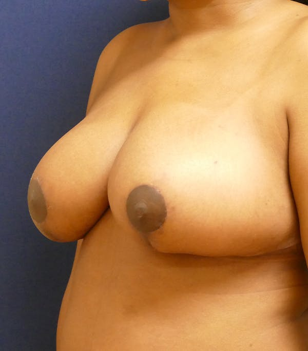 Breast Reduction Gallery - Patient 26000179 - Image 4