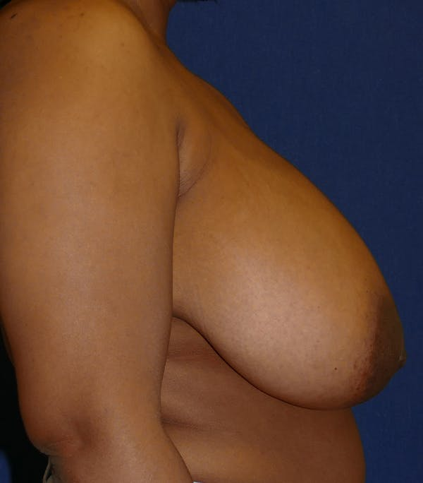 Breast Reduction Gallery - Patient 26000179 - Image 5