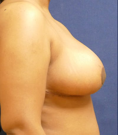 Breast Reduction Gallery - Patient 26000179 - Image 6