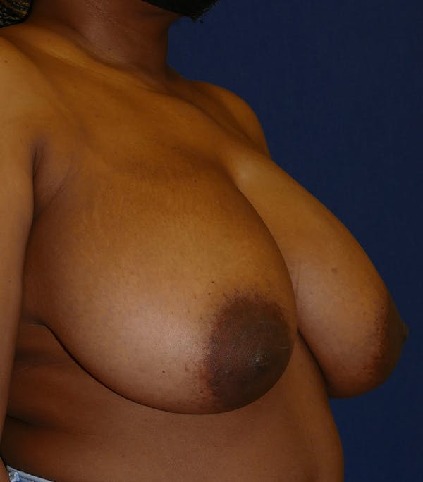 Breast Reduction Gallery - Patient 26000179 - Image 7
