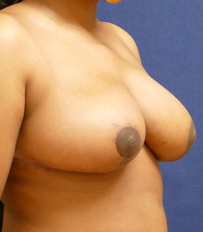 Breast Reduction Gallery - Patient 26000179 - Image 8