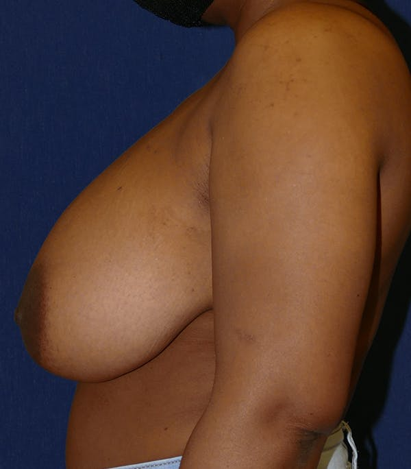 Breast Reduction Gallery - Patient 26000179 - Image 9