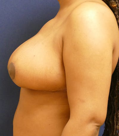 Breast Reduction Gallery - Patient 26000179 - Image 10