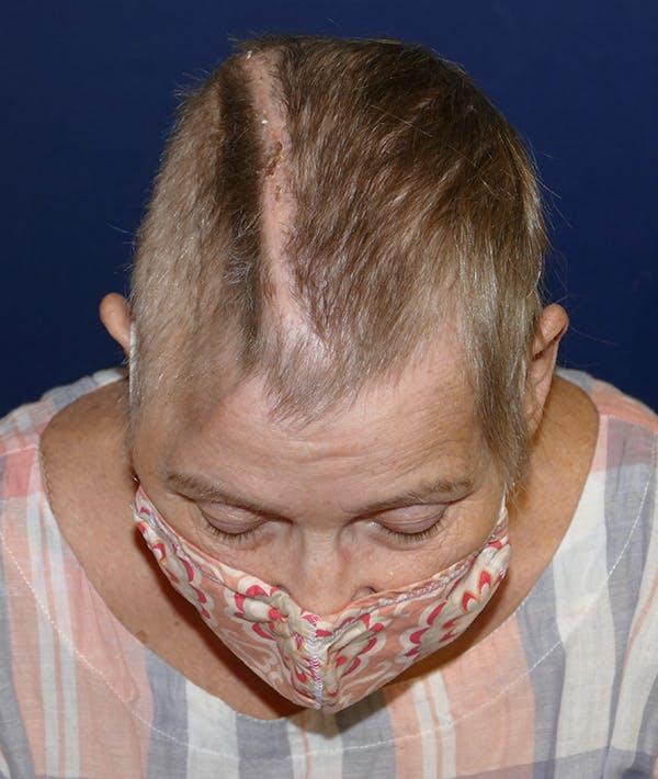 Miscellaneous Gallery - Patient 31716613 - Image 3