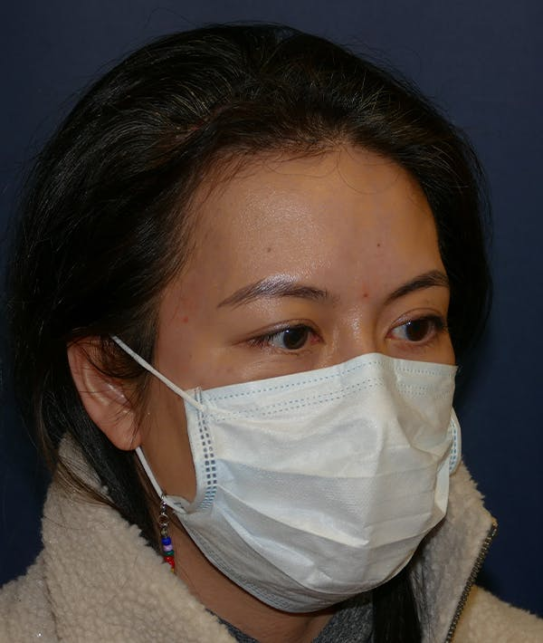 Miscellaneous Gallery - Patient 31716673 - Image 6