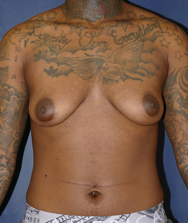 Masculinizing Surgery Gallery - Patient 31728850 - Image 1