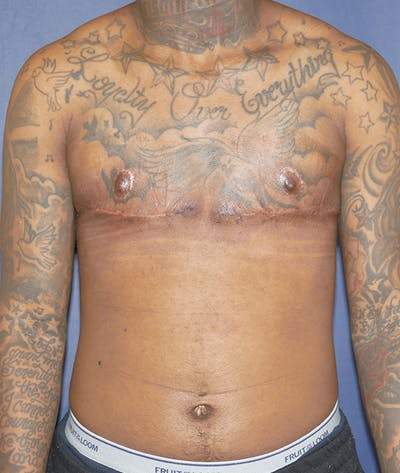Masculinizing Surgery Gallery - Patient 31728850 - Image 2