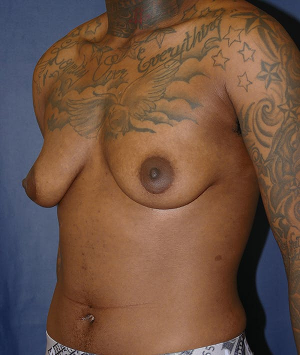 Masculinizing Surgery Gallery - Patient 31728850 - Image 3