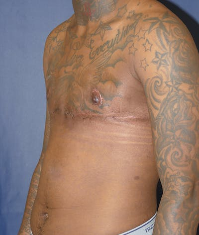 Masculinizing Surgery Gallery - Patient 31728850 - Image 4