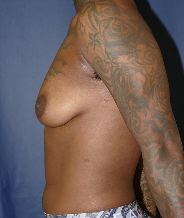 Masculinizing Surgery Gallery - Patient 31728850 - Image 5