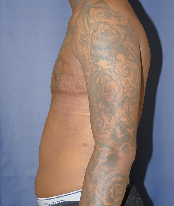 Masculinizing Surgery Gallery - Patient 31728850 - Image 6