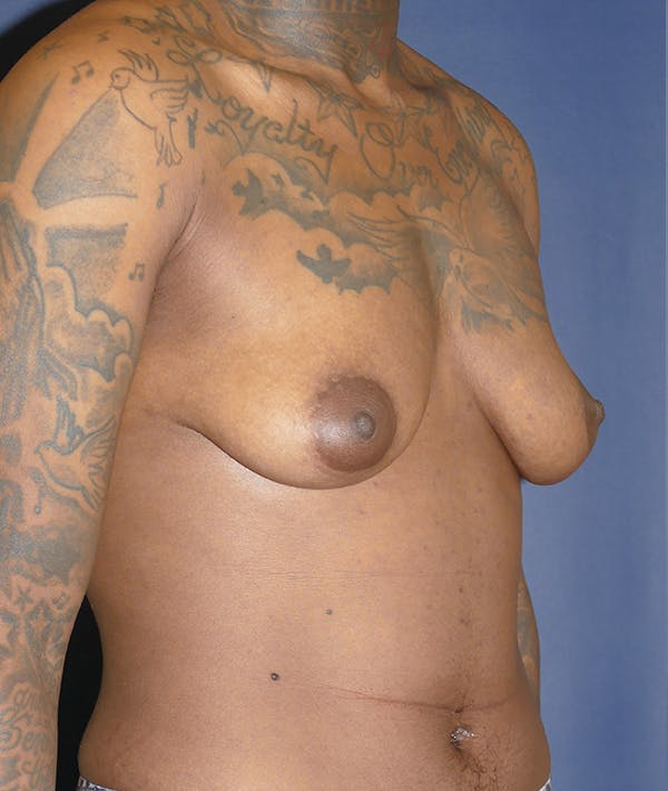Masculinizing Surgery Gallery - Patient 31728850 - Image 7
