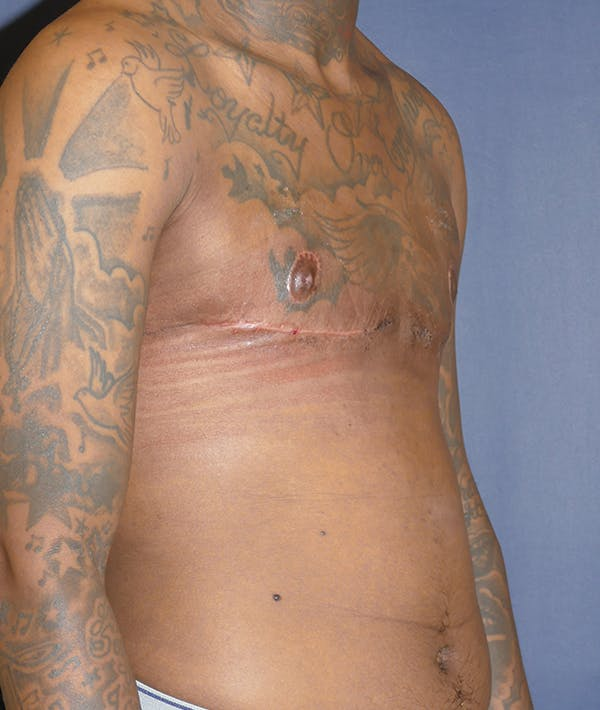 Masculinizing Surgery Gallery - Patient 31728850 - Image 8