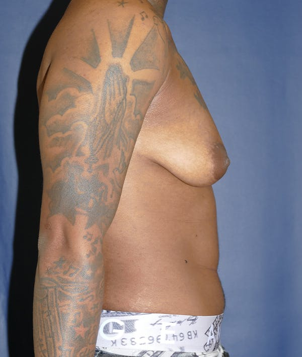 Masculinizing Surgery Gallery - Patient 31728850 - Image 9
