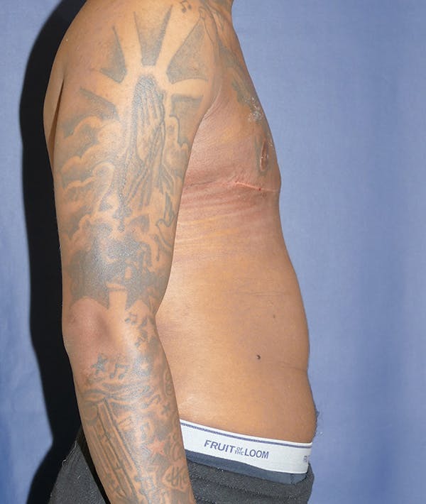 Masculinizing Surgery Gallery - Patient 31728850 - Image 10