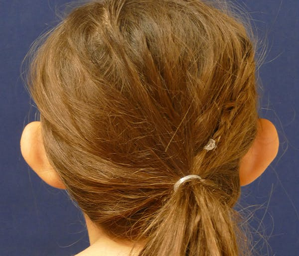 Ear Pinning (Otoplasty) Gallery - Patient 31729526 - Image 5