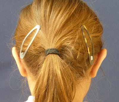 Ear Pinning (Otoplasty) Gallery - Patient 31729526 - Image 6