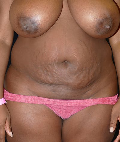 Tummy Tuck (Abdominoplasty) Gallery - Patient 31729553 - Image 1