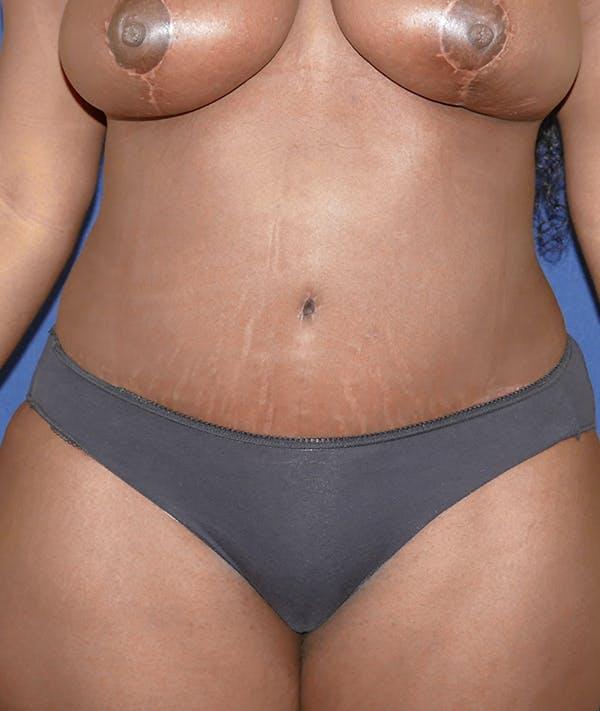 Tummy Tuck (Abdominoplasty) Gallery - Patient 31729553 - Image 2