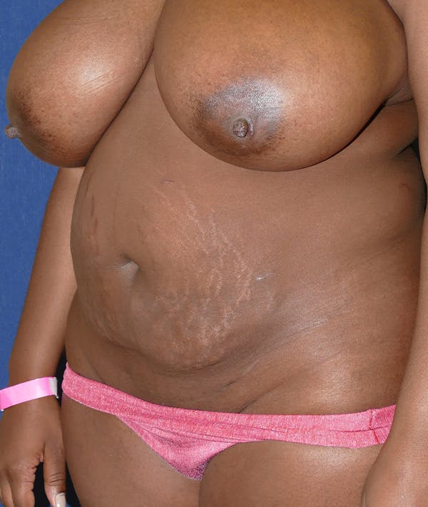 Tummy Tuck (Abdominoplasty) Gallery - Patient 31729553 - Image 3