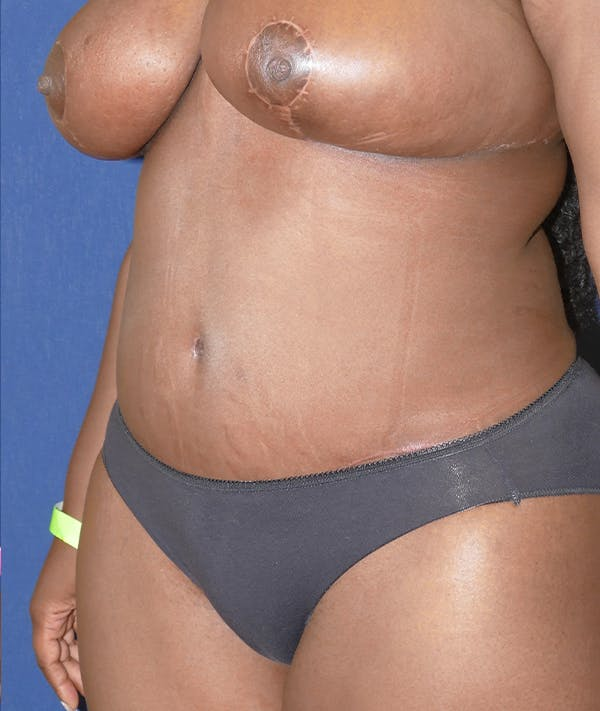 Tummy Tuck (Abdominoplasty) Gallery - Patient 31729553 - Image 4