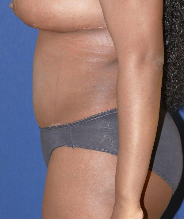 Tummy Tuck (Abdominoplasty) Gallery - Patient 31729553 - Image 6